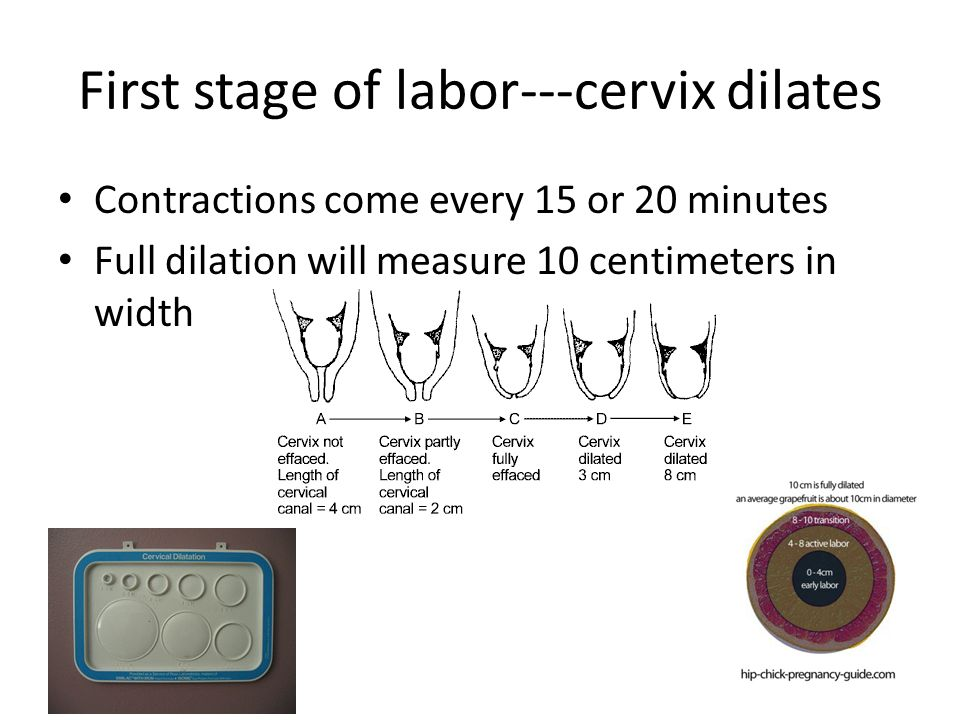 First stage of labor---cervix dilates
