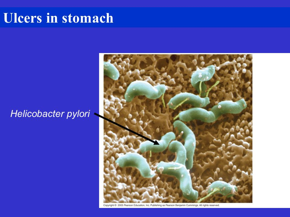 Ulcers in stomach Helicobacter pylori