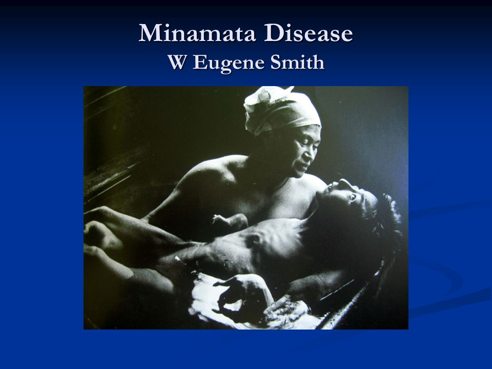 Minamata Disease W Eugene Smith