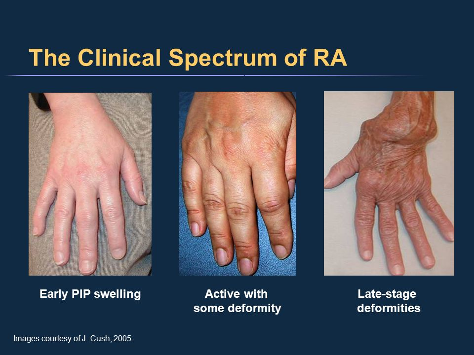 The Clinical Spectrum Of Ra