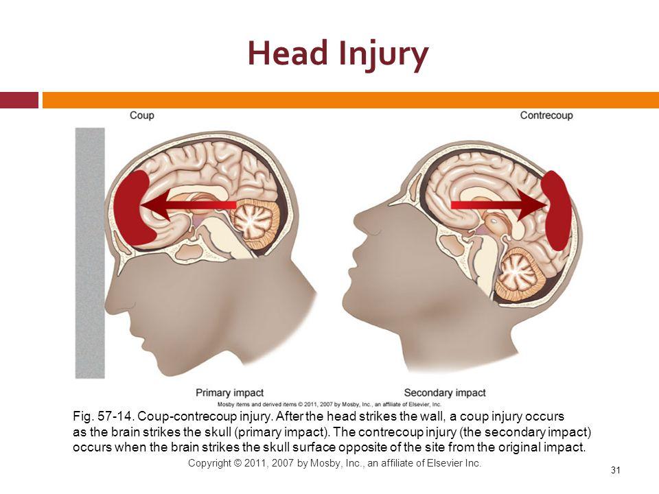 Online dating sites brain injury