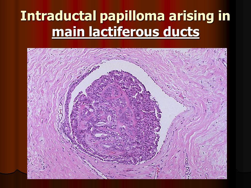 papilloma lactiferous duct distrugerea rapidă a viermilor
