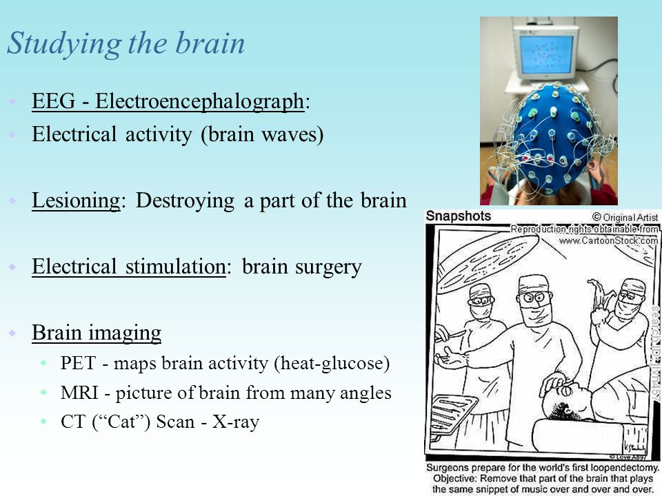 Studying the brain EEG - Electroencephalograph: