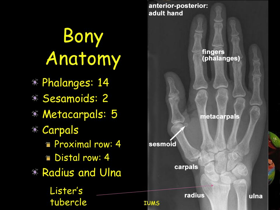 Clinical Examination of the Hand and Wrist - ppt download