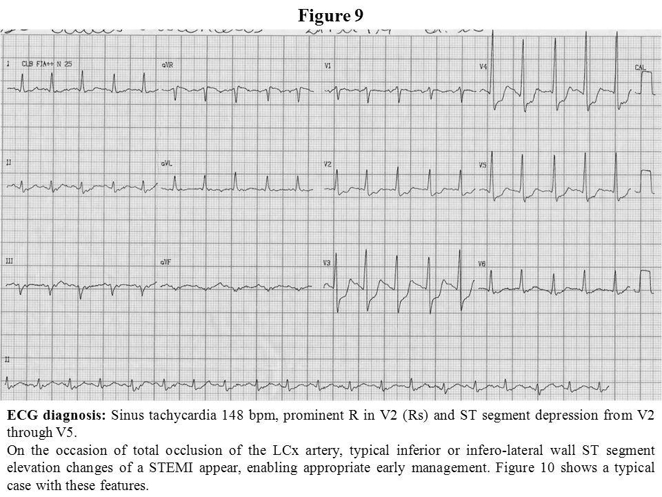 Diagnosis of Coronary Artery Disease  Part II - Case reports