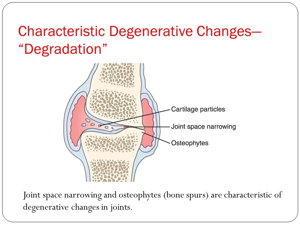 Characteristic Degenerative Changes— Degradation