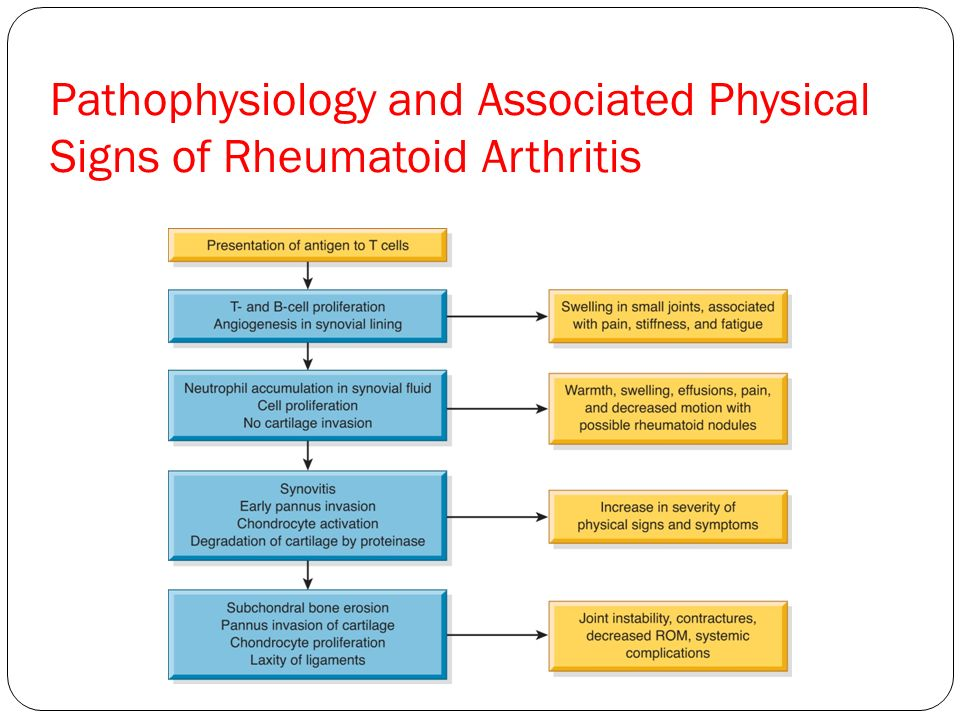 Pathophysiology and Associated Physical Signs of Rheumatoid Arthritis