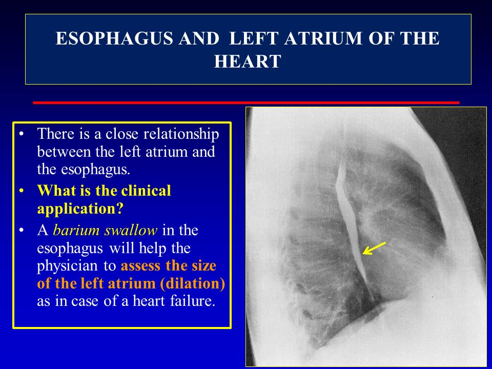 ESOPHAGUS AND LEFT ATRIUM OF THE HEART
