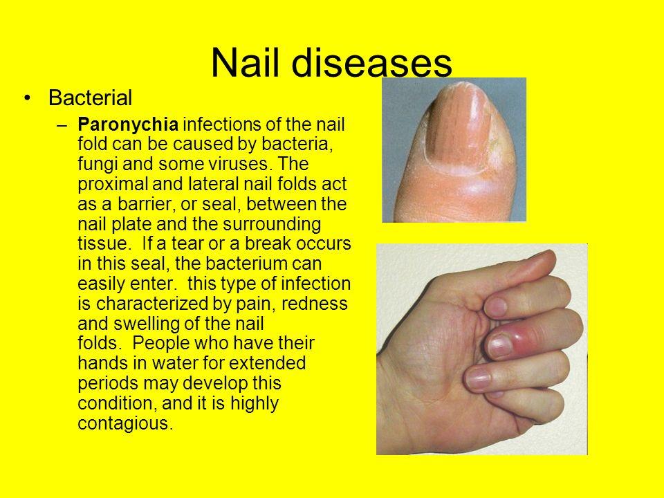 2 Nail Diseases Bacterial