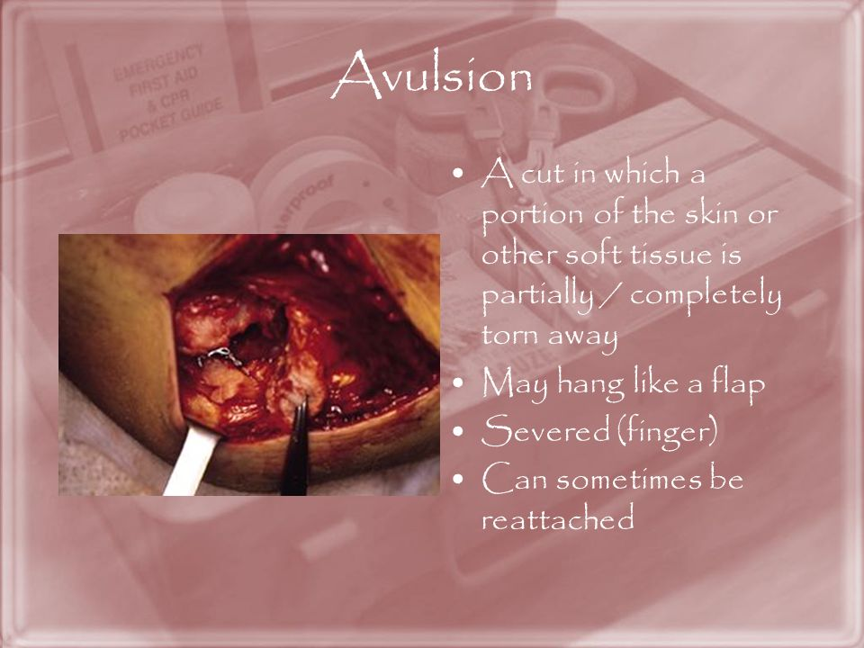 Avulsion A cut in which a portion of the skin or other soft tissue is partially / completely torn away.
