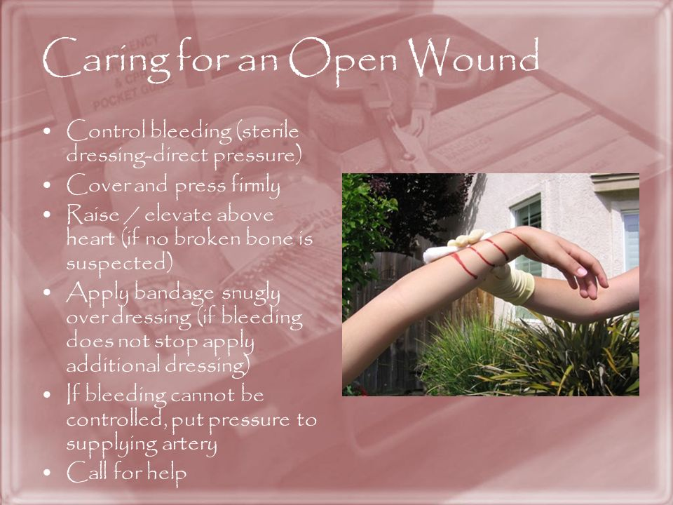 Caring for an Open Wound