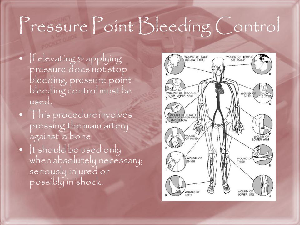 Pressure Point Bleeding Control