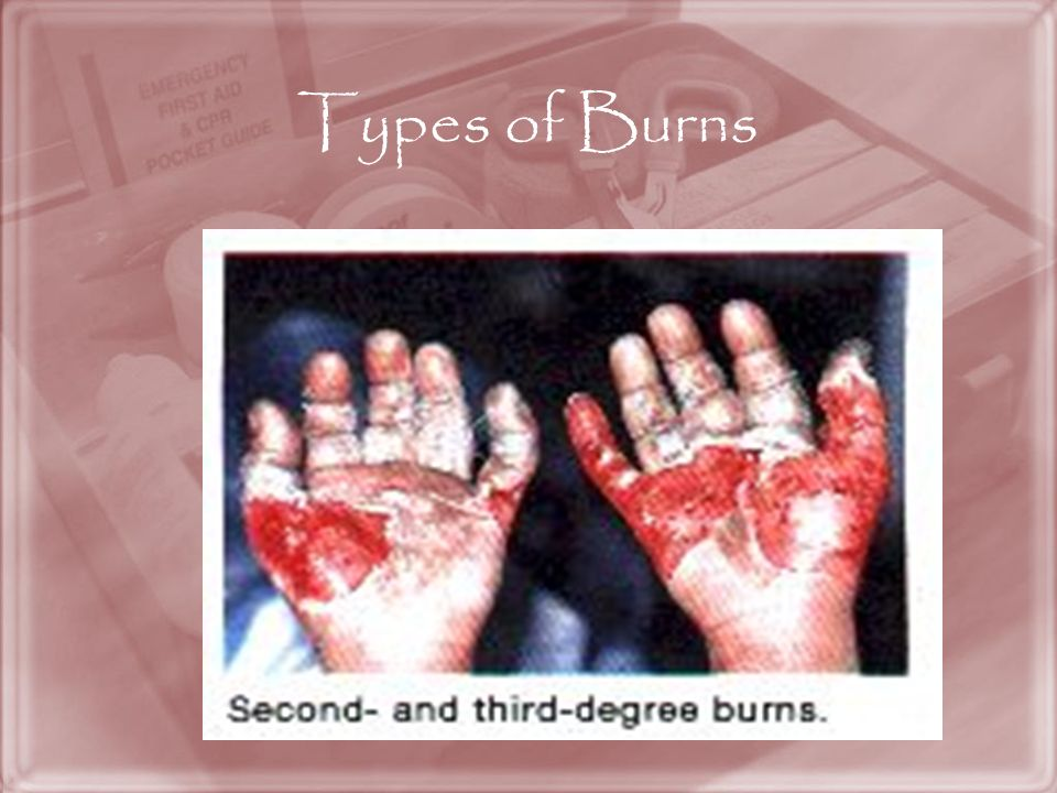Types of Burns