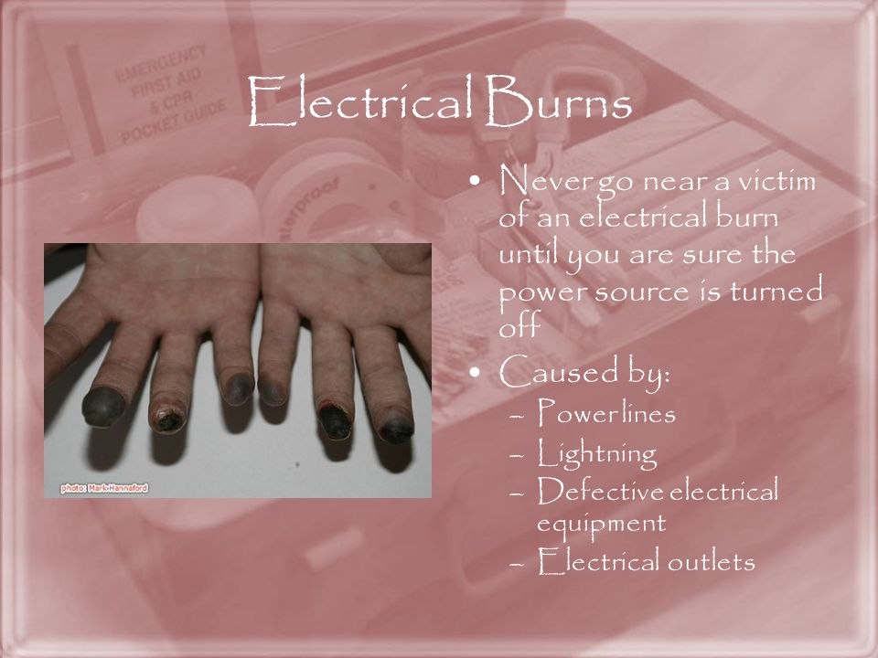 Electrical Burns Never go near a victim of an electrical burn until you are sure the power source is turned off.