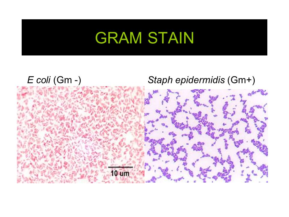 simple stain lab The gram stain is a type of differential stain that allows a (micro)biologist to identify the differences between organisms and/or differences within the same organism gram staining bacteria requires the use of aseptic technique to ensure the sterility of the experiment  ta_lisa_gram stain lab report.