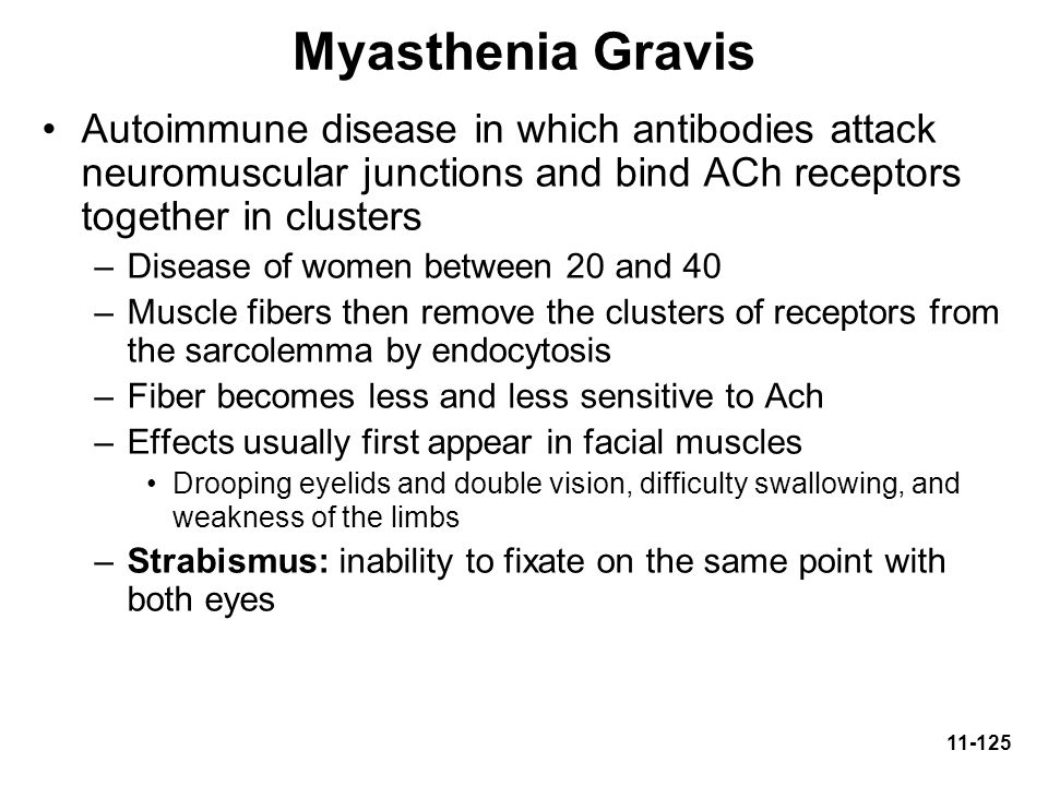 Myasthenia Gravis Autoimmune disease in which antibodies attack neuromuscular junctions and bind ACh receptors together in clusters.