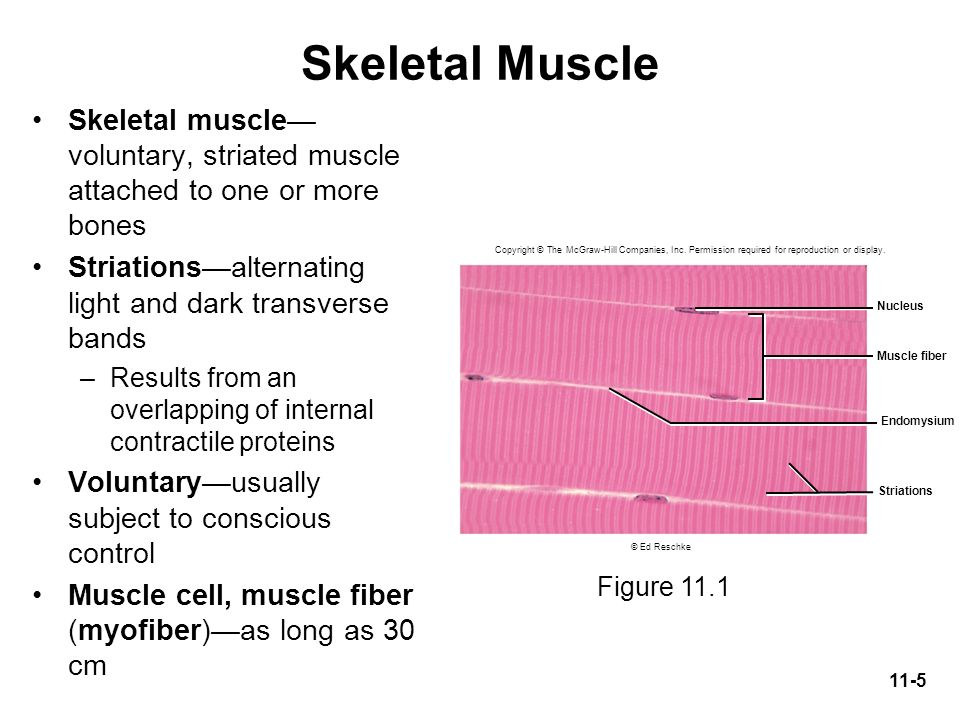 Skeletal Muscle Skeletal muscle—voluntary, striated muscle attached to one or more bones. Striations—alternating light and dark transverse bands.