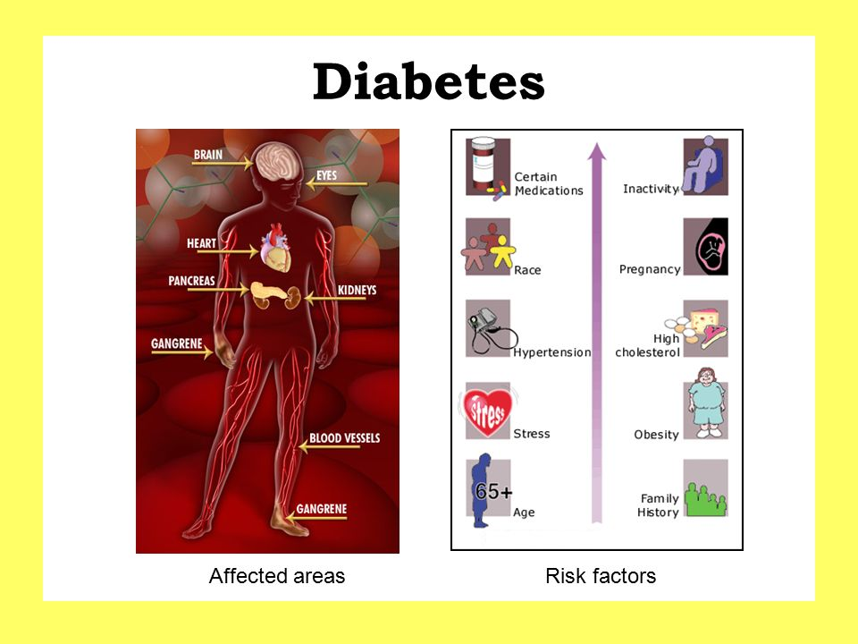Diabetes Affected areas Risk factors