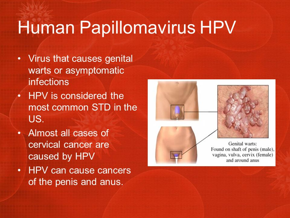 Hpv And Caring For Women With Cancer