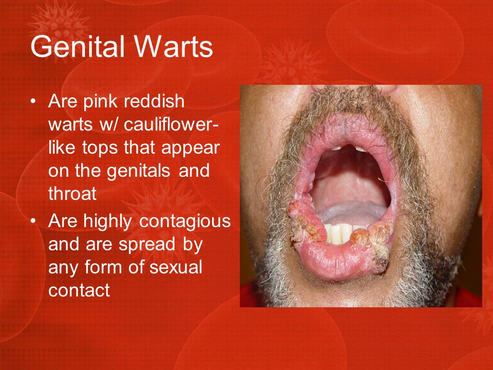 Genital Warts Are pink reddish warts w/ cauliflower-like tops that appear on the genitals and throat.