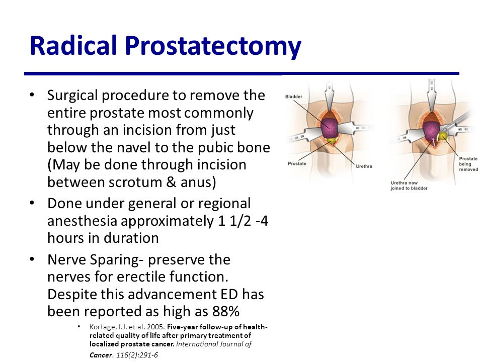 Viagra Post Radical Prostatectomy