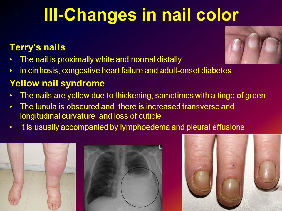 Nail and Nail Disorders - ppt video online download