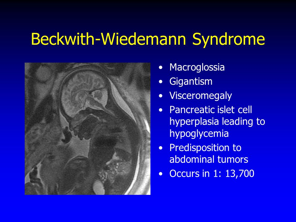Beckwith-Wiedemann Syndrome