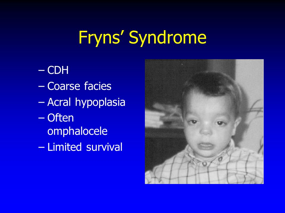 Fryns' Syndrome CDH Coarse facies Acral hypoplasia Often omphalocele