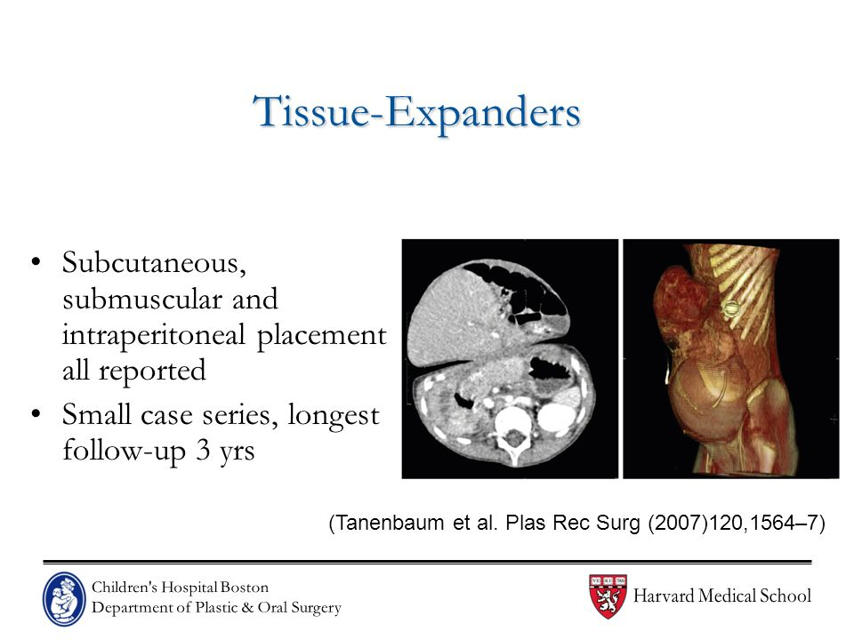 Tissue-Expanders Subcutaneous, submuscular and intraperitoneal placement all reported. Small case series, longest follow-up 3 yrs.