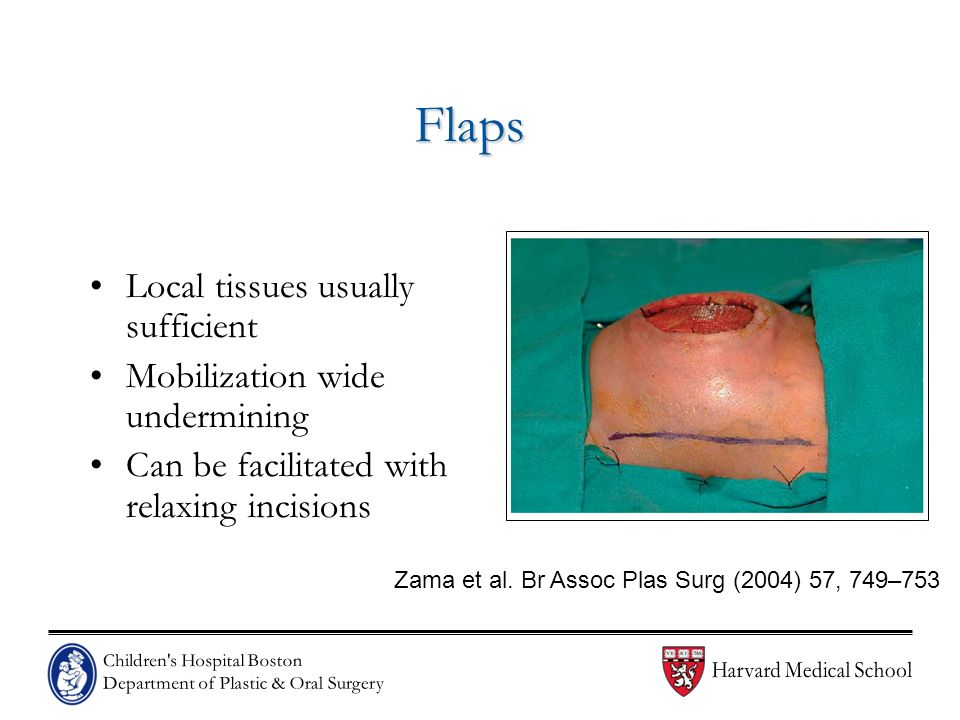 Flaps Local tissues usually sufficient Mobilization wide undermining