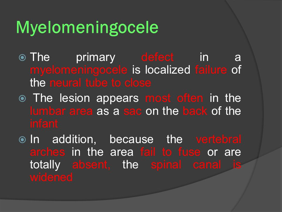 Myelomeningocele The primary defect in a myelomeningocele is localized failure of the neural tube to close.