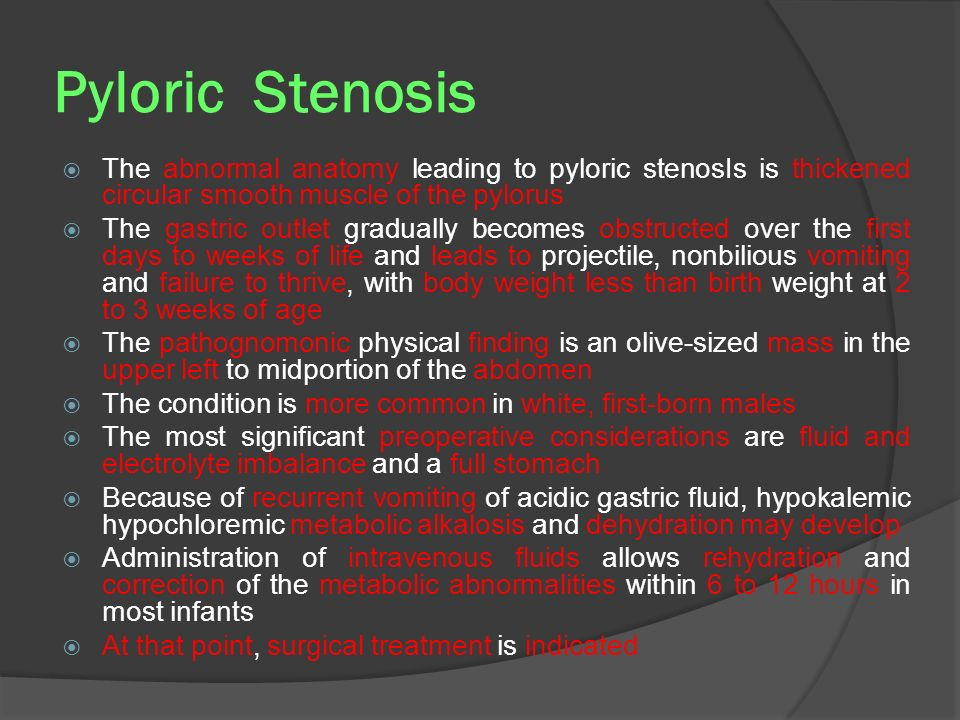 Pyloric Stenosis The abnormal anatomy leading to pyloric stenosIs is thickened circular smooth muscle of the pylorus.