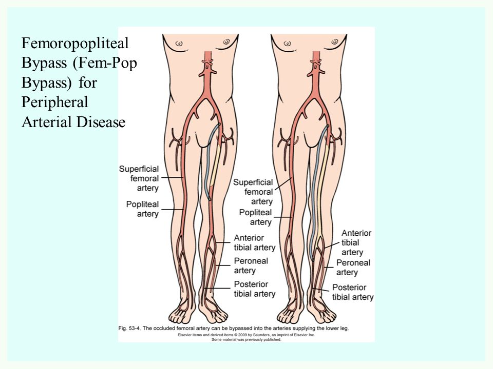 Modern Superficial Femoral Artery Anatomy Vignette Human Anatomy