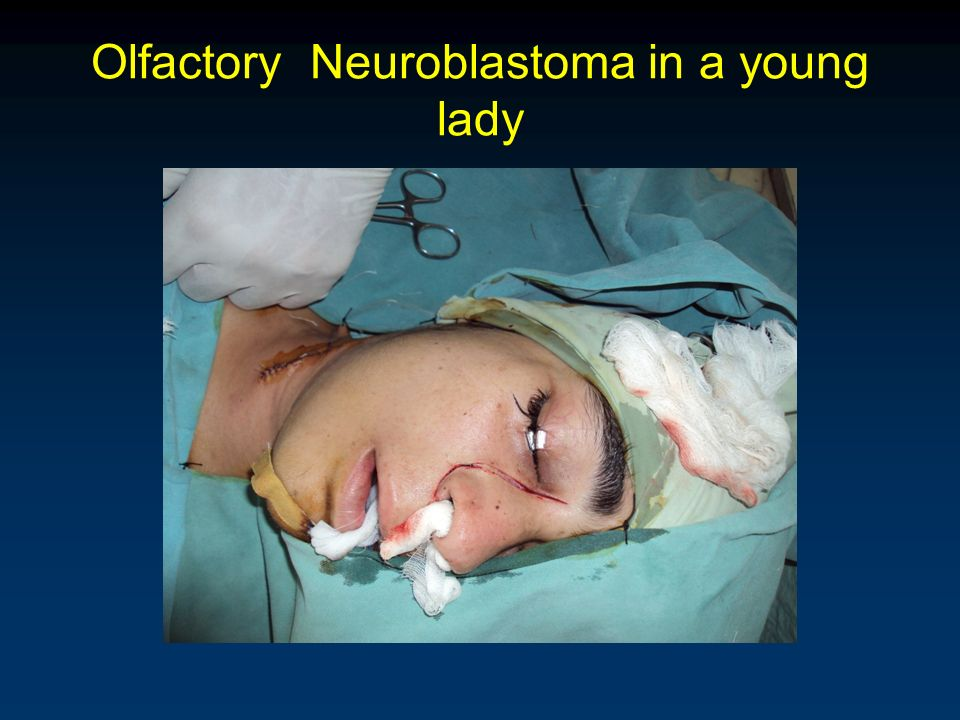Olfactory Neuroblastoma in a young lady