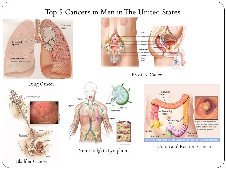 Top 5 Cancers in Men in The United States