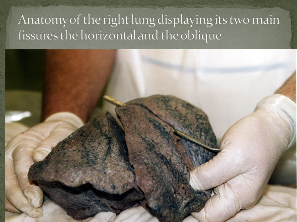 Anatomy of the right lung displaying its two main fissures the horizontal and the oblique