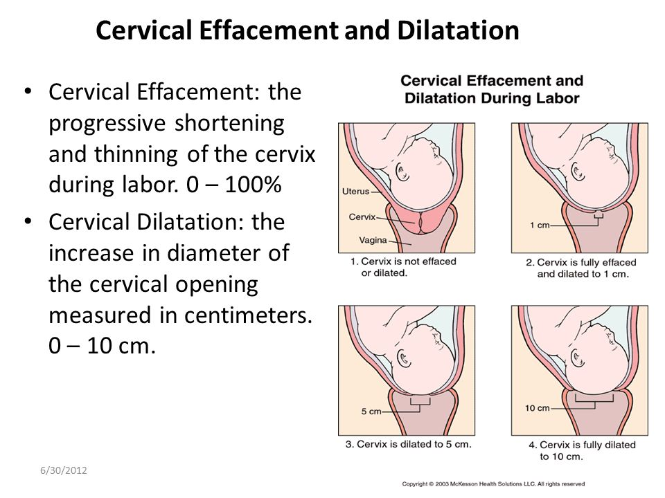 Cervical Effacement and Dilatation