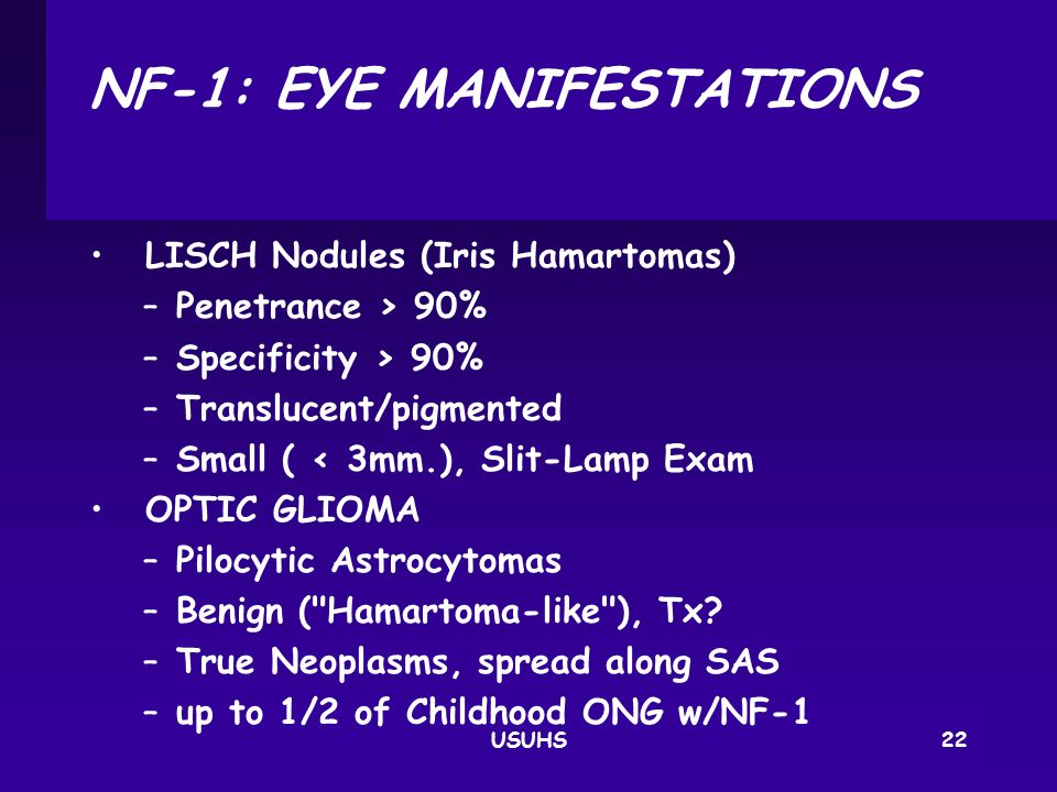 NF‑1: EYE MANIFESTATIONS