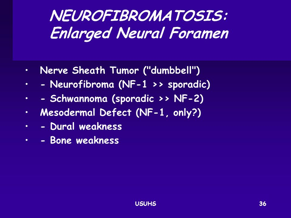 NEUROFIBROMATOSIS: Enlarged Neural Foramen