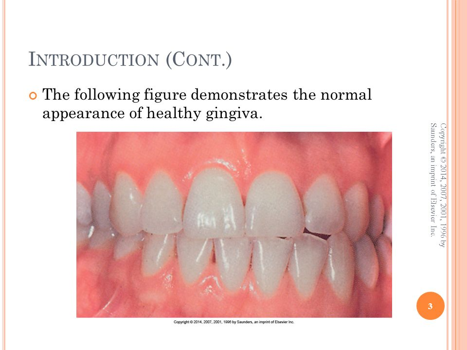 Chapter 6 Gingival Diseases Ppt Download