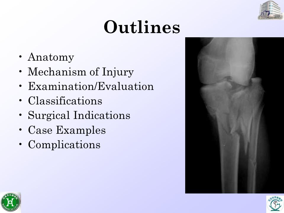 Proximal Tibial Fractures - ppt video online download