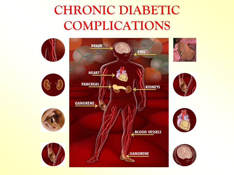 CHRONIC DIABETIC COMPLICATIONS