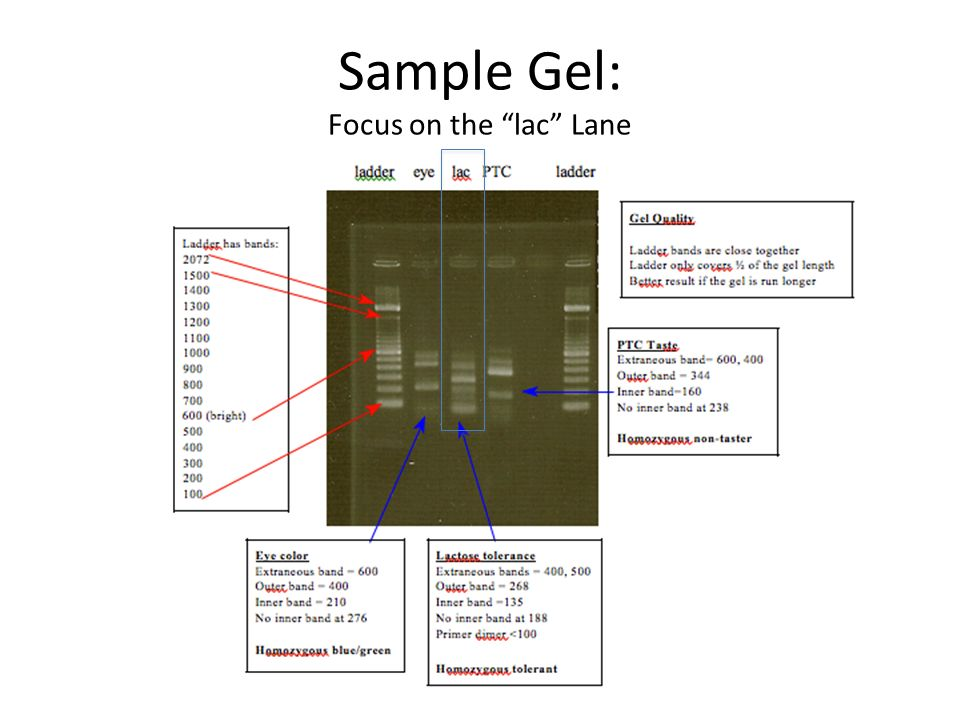 Sample Gel: Focus on the lac Lane
