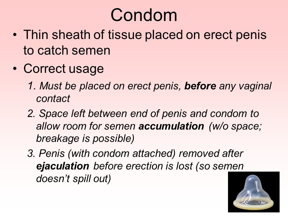 Condom Thin sheath of tissue placed on erect penis to catch semen