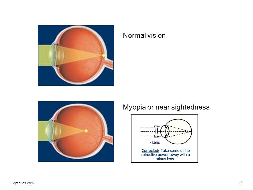 myopia hyperopia norma
