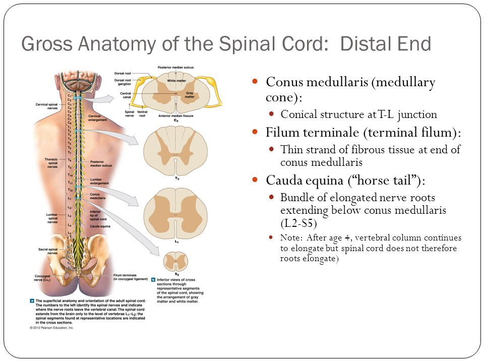 Chapter 13: The Spinal Cord and Spinal Nerves - ppt video online ...