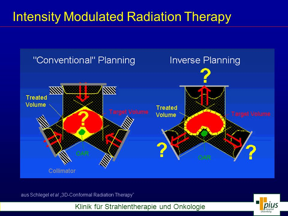 Intensity Modulated Radiation Therapy
