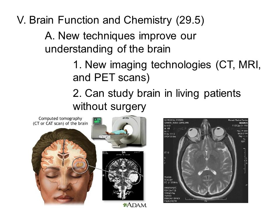 V. Brain Function and Chemistry (29.5)