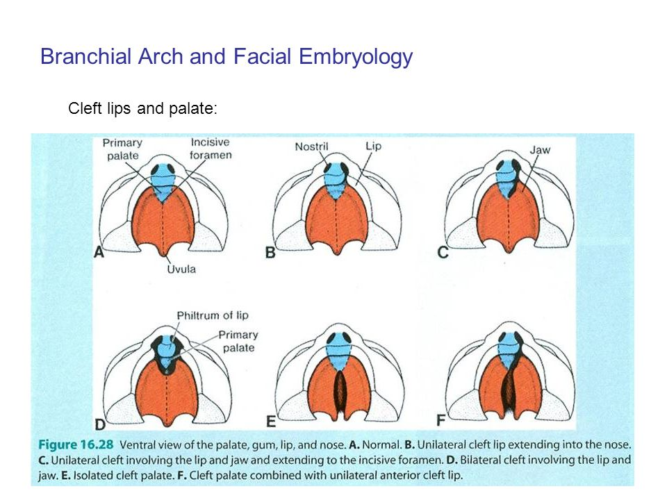 Cleft Lip And Palate Embryology Ppt | Anexa Market
