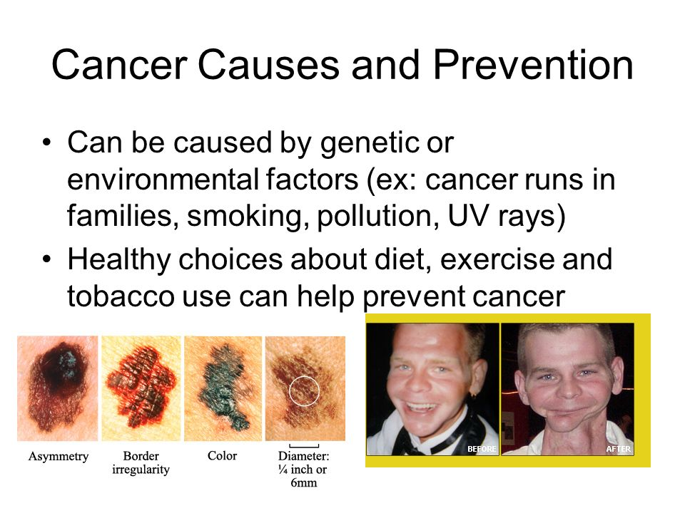 Cancer Causes and Prevention